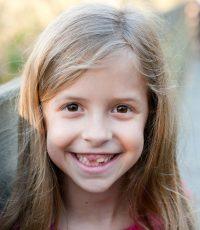 Danica Teeth